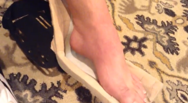 foot contractures